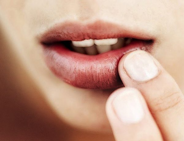 Remove Dark Spots on Lips
