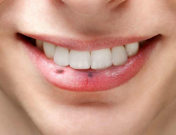 Remedies to reduce black spot form lips